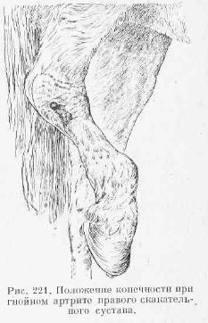 Серозный артрит скакательного сустава проблемы с суставами родить ребенка