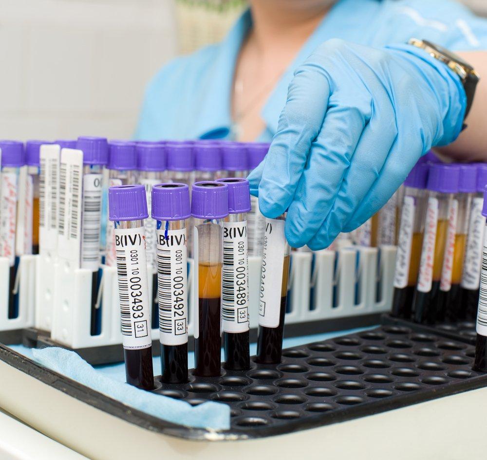 Кровь на ВИЧ, сифилис и гепатиты